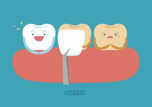 The veneer procedure